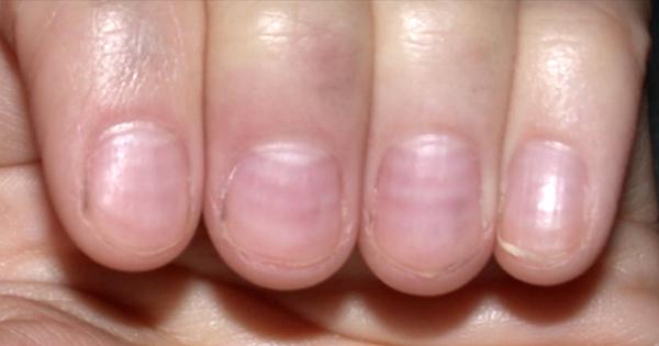 10 Τρομακτικά Μηνύματα που σου στέλνουν τα Νύχια σου, αλλά δεν μπορείς να καταλάβεις.